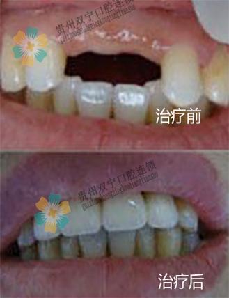 牙齿对比.jpg
