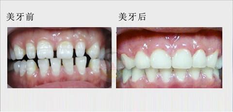 牙齿小缝隙.jpg