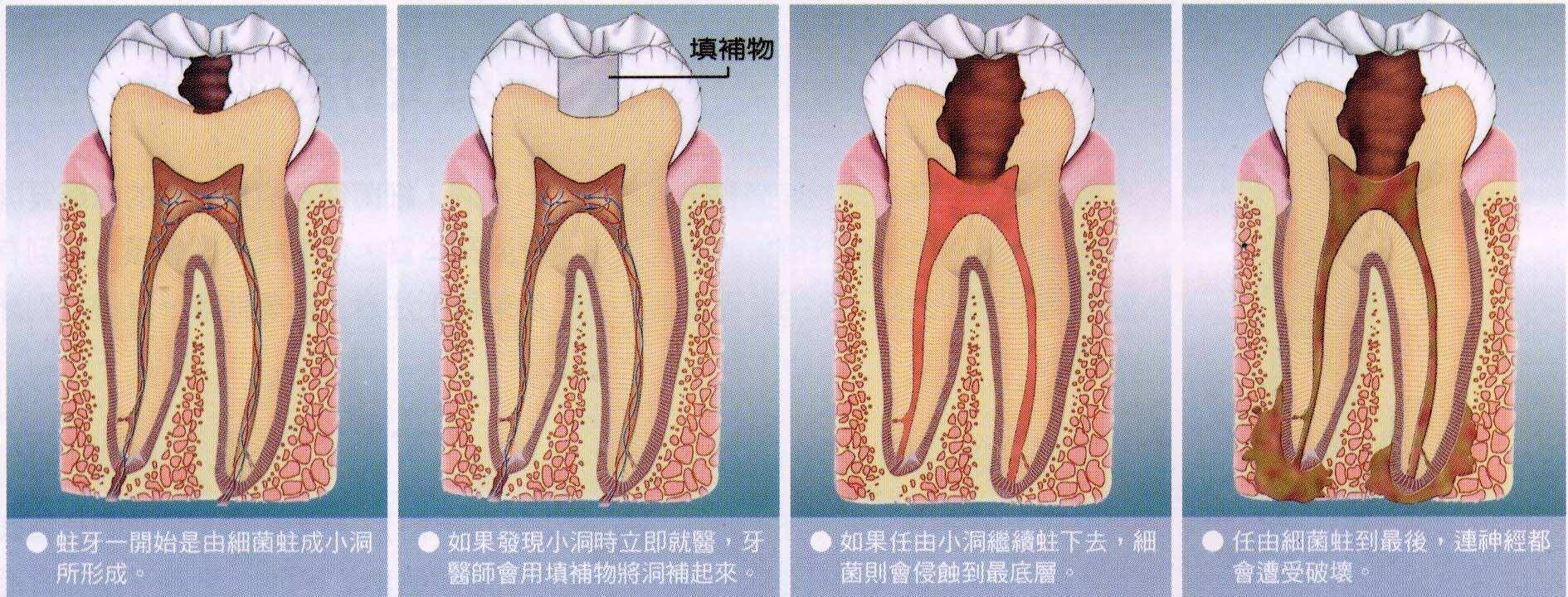 牙髓炎的治疗方法及原则.我们需要补充的知识
